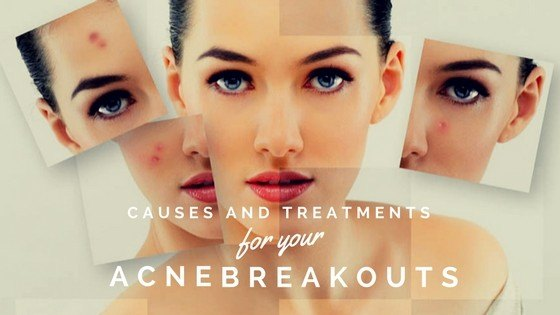 Causes and Treatments for Your Acne Breakouts